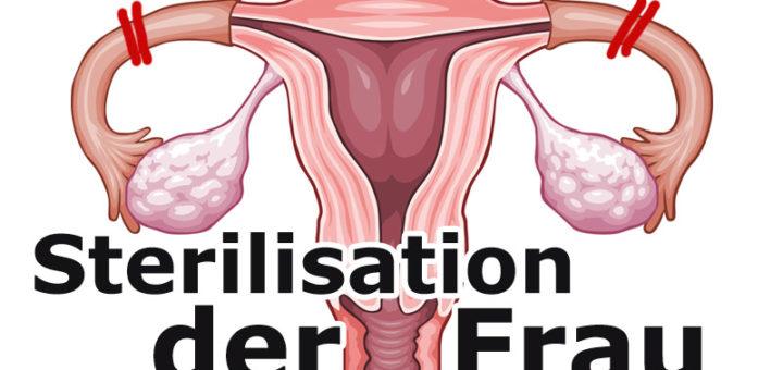 Sterilisation der Frau zur Empfängnisverhütung