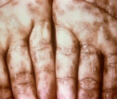 Syphilis, Lues, Geschlechtskrankheiten