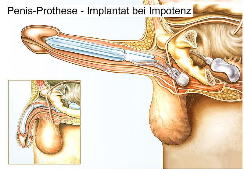 Penisprothesen Implantat