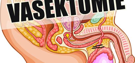 Was ist eine Vasektomie?