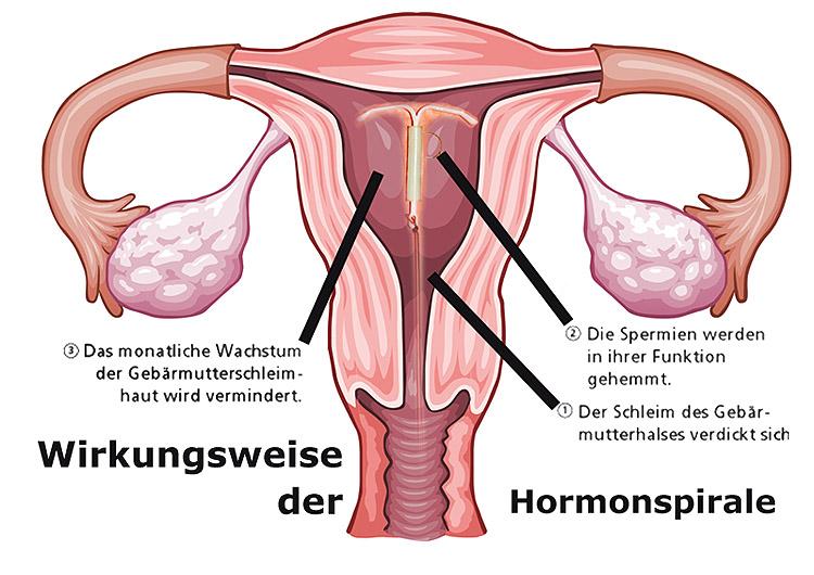 Wirkungsweise der Hormonspirale